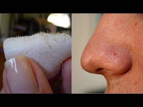 Easiest Trick To Remove Blackheads And Get Glowing Face