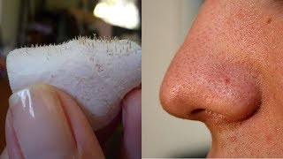 Easiest Trick To Remove Blackheads And Get Glowing Face thumbnail