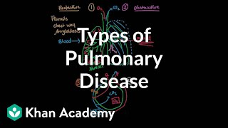 Types of pulmonary diseases