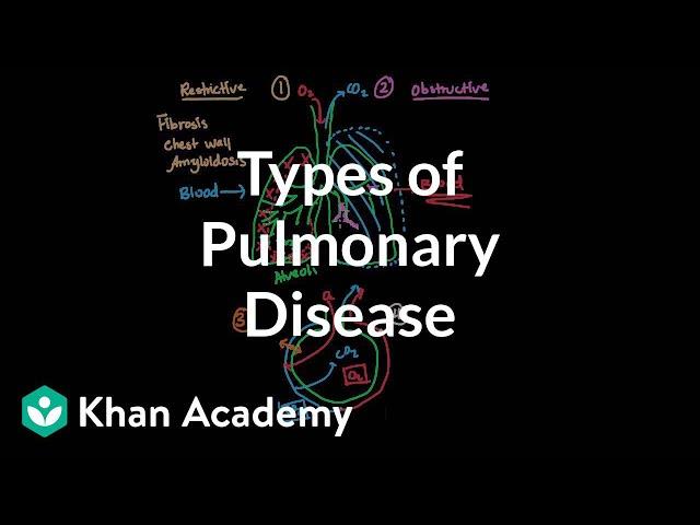 Types of pulmonary diseases | Respiratory system diseases | NCLEX-RN | Khan Academy