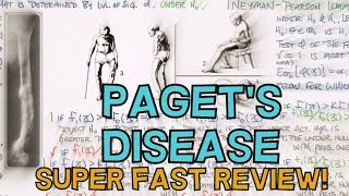 PAGET'S DISEASE OF BONE - FAST REVIEW - DEFINITION, CAUSE, STAGES, INVESTIGATIONS, MANAGEMENT