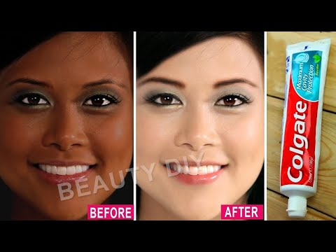I Applied Toothpaste On My Skin & See What Happened 鈹� 7 Amazing Toothpaste Beauty Hacks鈹�0% Working