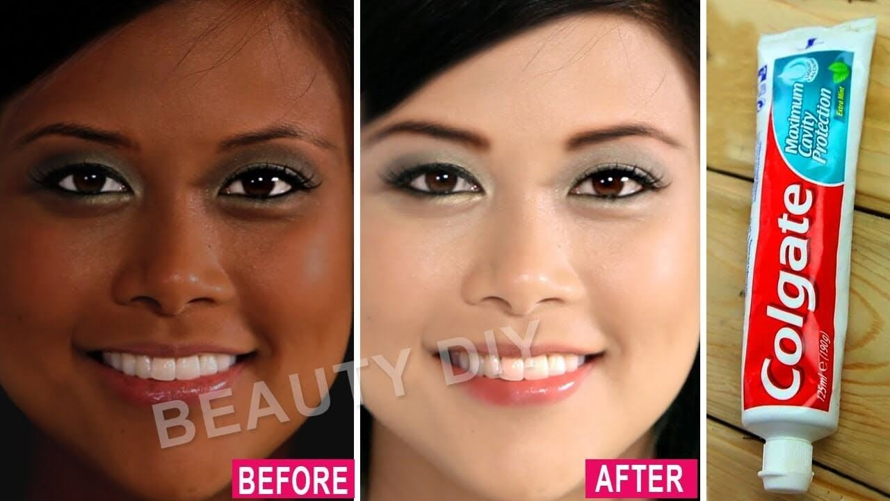 I Applied Toothpaste On My Skin See What Happened 7 Amazing Toothpaste Beauty Hacks 100 Working