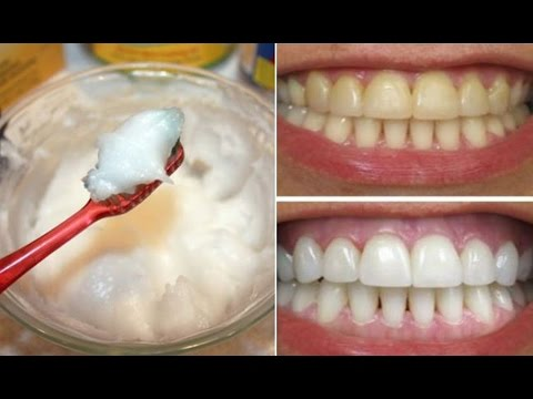 Thumbnail: How To Whiten Your Yellow Teeth Naturally At Home (दांत चमकाना)/Tooth Whitening