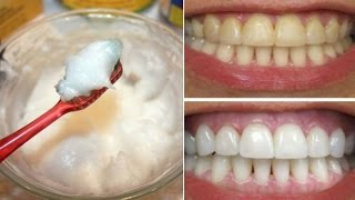 How To Whiten Your Yellow Teeth Naturally At Home (दांत चमकाना)/Tooth Whitening
