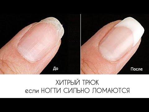 Чем укрепить ногти чтобы не слоились и не ломались