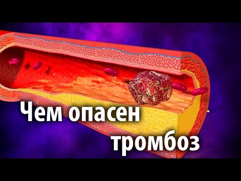 Чем опасен тромбоз? | проктология | проктолог | тромбоза | геморроя | геморрой | тромбоз | оксфорд | медикал | лечение | прямой