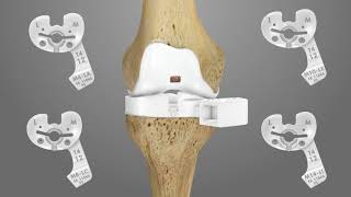 iTotal PS Knee Replacement Surgical Technique Animation | Conformis