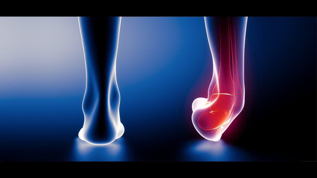 Ankle sprain physical therapy - Ankle Sprain Physical Therapy Treatment