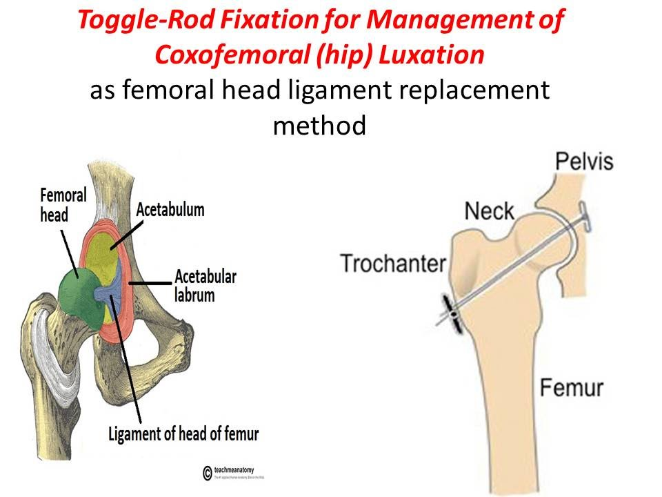 Toggle-Rod Fixation for Management of Coxofemoral (hip) Luxation ...