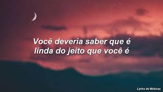 Alessia Cara - Scars To Your Beautiful (Tradução) Video