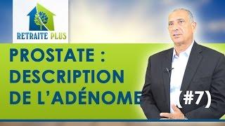 Qu'est-ce qu'un adénome ?