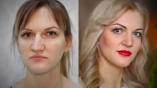 Операция красота 6 серия