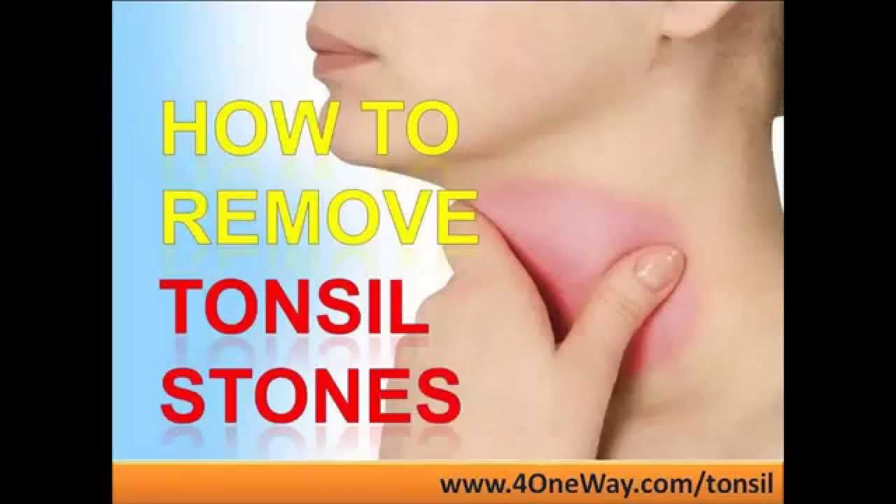 How To Remove Tonsil Stones - How To Prevent Tonsil Stones - YouTube