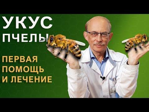 Как снять отек после укуса пчелы
