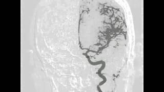 Aneurisma gigante de Aorta ascendente.
