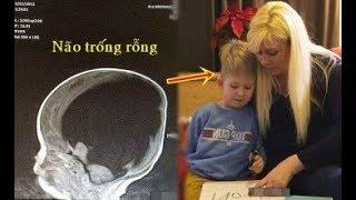 Con sinh ra không có não, nhìn phim chụp X-quang bác sĩ bó tay, 4 năm sau điều kỳ lạ xảy ra