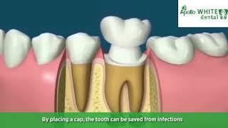 Root Canal Treatment Procedure | Apollo White Dental
