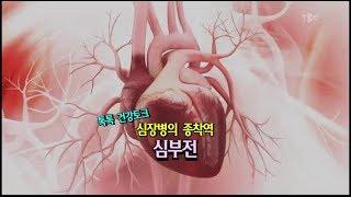 [TBC클리닉 건강365]심장병의 종착역 심부전/TBC