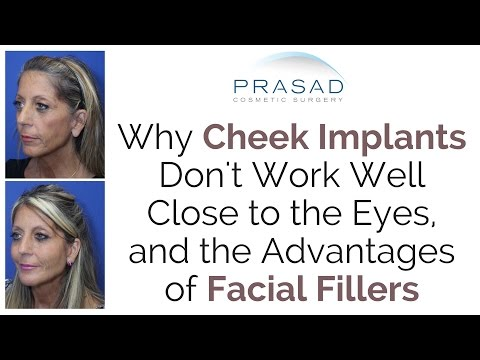 Why Cosmetic Fillers Are Recommended Over Cheek Implants When Placed Close To The Eyes