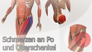 Schmerzen an Po und Oberschenkel - InGAsys - Intelligente Ganganalyse Software