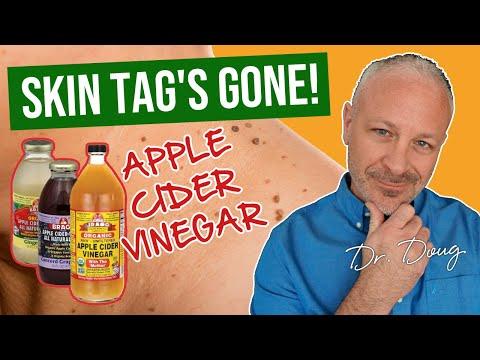 身上一粒粒的「小肉瘤」真的很討人厭!醫生教你如何用蘋果醋去除