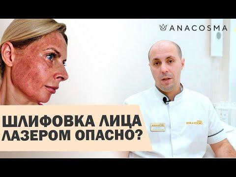 🔥Лазерная шлифовка лица 🔥ОПАСНО?🔥 Восстановление, ДО и После