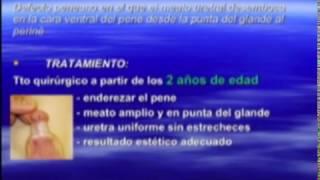 Repeat youtube video Patologia del pene