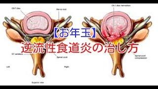 【お年玉】逆流性食道炎の治し方