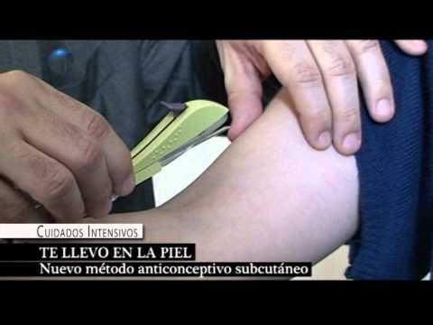 Chip anticonceptivo precio paraguay