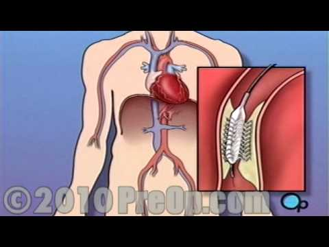 Heart Health Stent Implantation Coronary Surgery Preop Patient