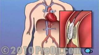 Heart Health Stent Implantation Coronary Surgery PreOp® Patient Education Feature