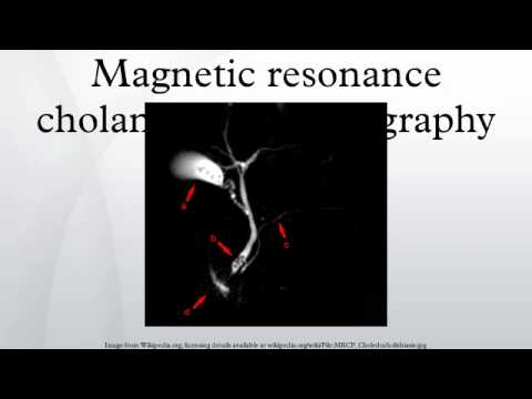 Magnetic resonance cholangiopancreatography