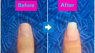 How To Grow Your Nails Long And Fast /5 Ways