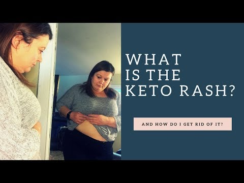keto-rash-|-sandy-norton-|-that1ketochic