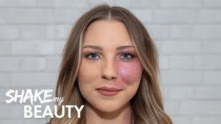 Modelling Helped Me Beat My Birthmark Bullies | SHAKE MY BEAUTY