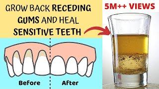 Heal Receding Gums and Grow Back | Treat Sensitive Teeth and Reverse Receding Gums | Gingivitis screenshot 3