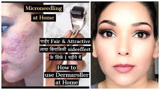 घर मई dermaroller इस्तेमाल कैसे करें | Microneedling at Home