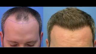Minoxidil 5% before after