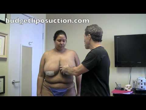 Breast Reductionmassive Breastssteven Burres Md