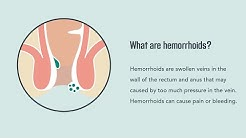 Hemorrhoids: Symptoms, Causes, Treatment, and Prevention | Merck Manual Consumer Version