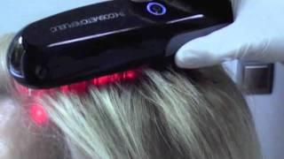 Tratamiento laser capilar (profesional) / Hair loss laser treatment (professional)