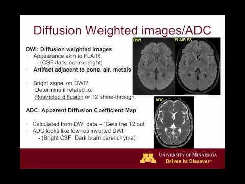 Brain MRI sequences 101 thumbnail