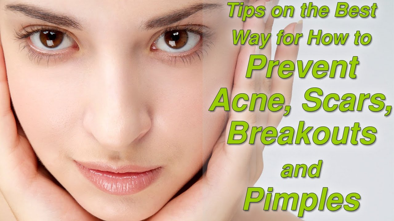 How To Prevent Acne On Face Naturally