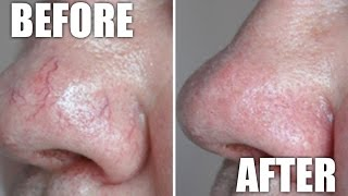 Vein removal of facial laser for Cost