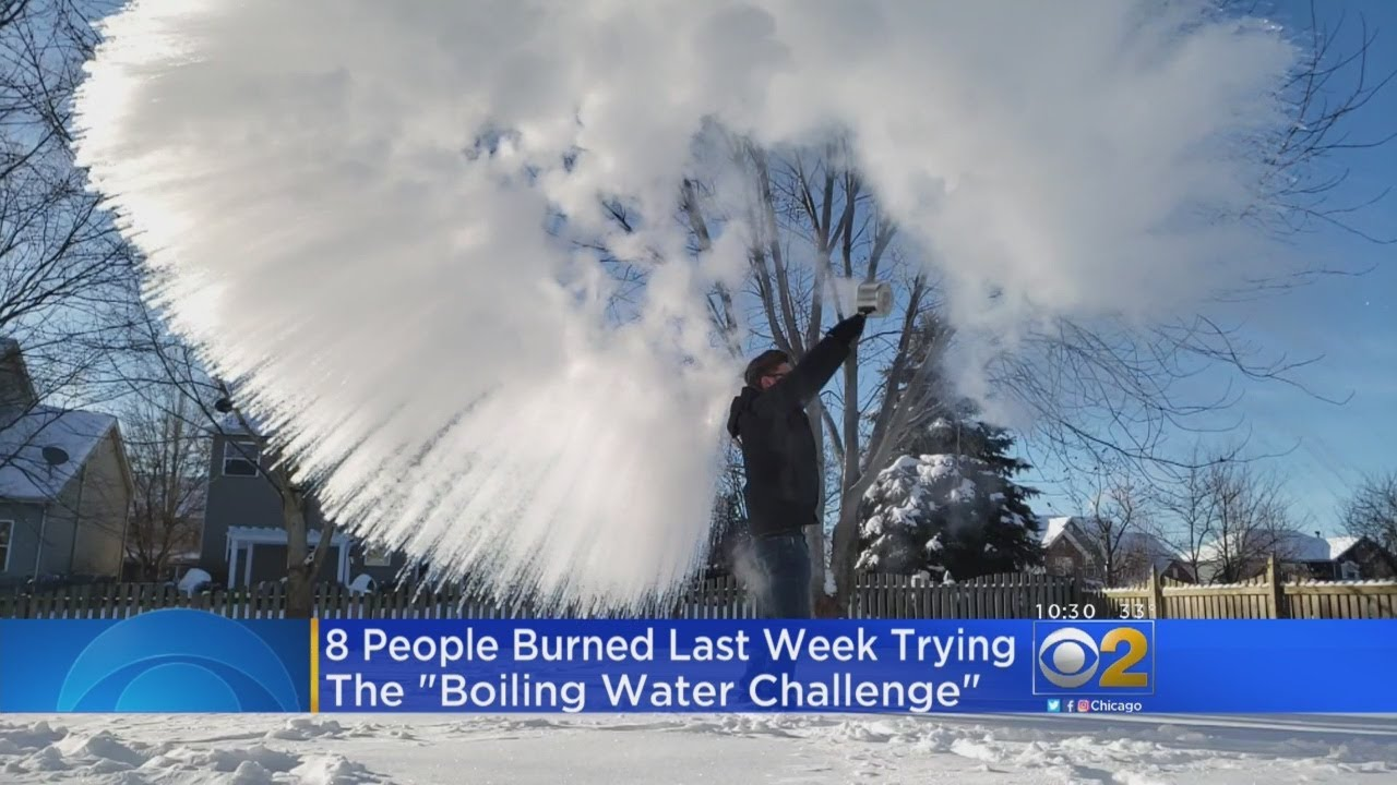 That Viral 'Boiling Water Challenge' Is Landing People in