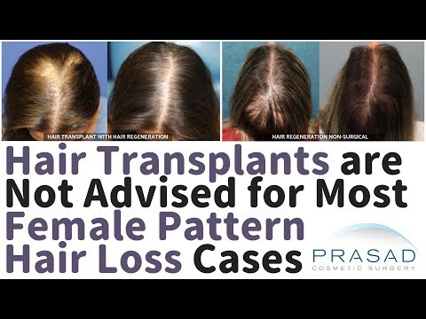 Female Pattern Hair Loss - Why Hair Transplants Are Not Advised In Majority Of Cases