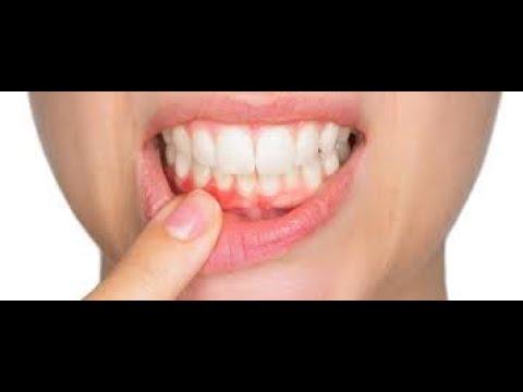 cáscara de banano para blanquear los dientes