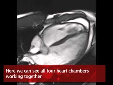 British Heart Foundation - £2m MRI scanner unlocks heart secrets