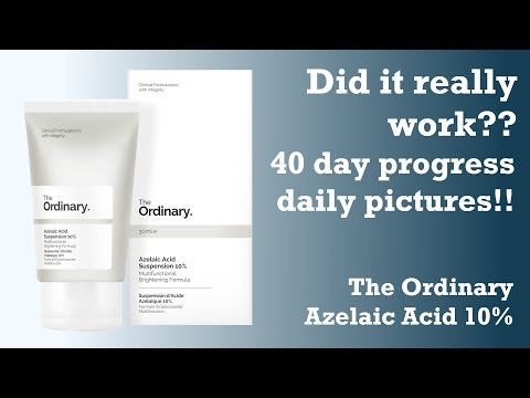 DID IT HEAL MARKS?? 40 day test on Azelaic Acid 10% from The Ordinary